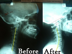Before and After Pettibon Chiropractic X-rays