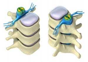 Intervertebral Discs are helped through Pettibon Chiropractic Care