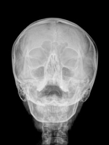 Sinus Infections Helped With Endonasal Cranial Adjusting - Dr Adam Fields