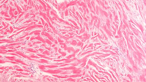 Scar Tissue Fibers