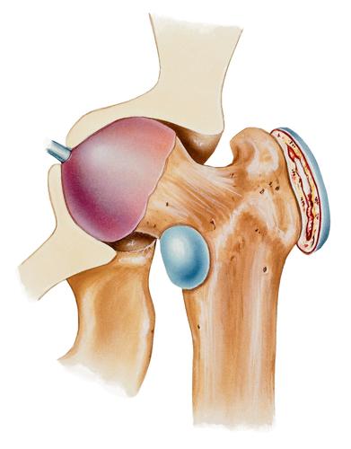Trochanteric Bursitis is helped with ESWT
