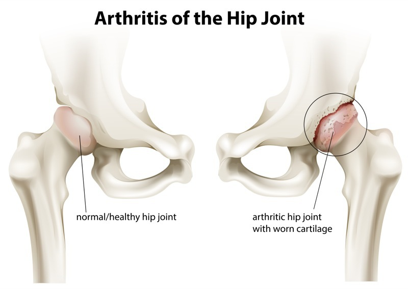 Arthritis of the hip socket and the role of ESWT